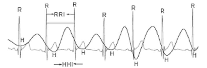 heart rate variability HRV